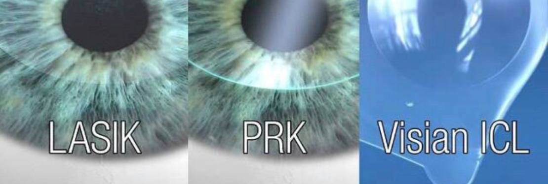 SharpeVision MODERN LASIK reviews | 11005 Burnet Rd - Austin TX