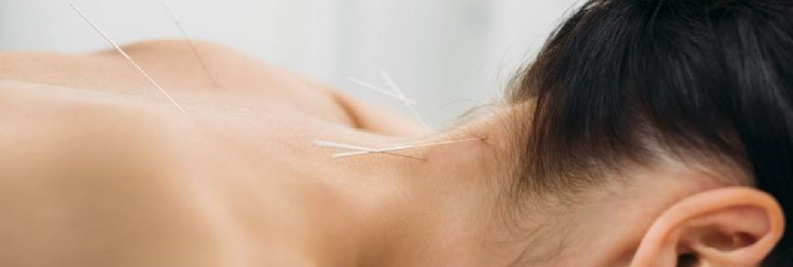Ling's Acupuncture, Inc. reviews | 120 Gatlin Ave - Orlando FL